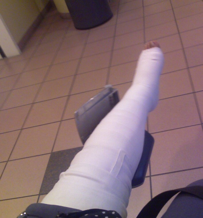 My zombie splint.